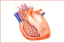 フィラリアに感染した心臓のイラスト
