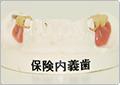 保険内の義歯だと金属の部分が見えてしまいます。